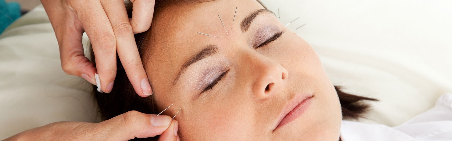 Anti-ageing Acupuncture Look Younger!